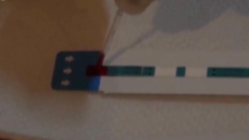 GIORNATA CONTRO L'AIDS, NUMERI IN CRESCITA